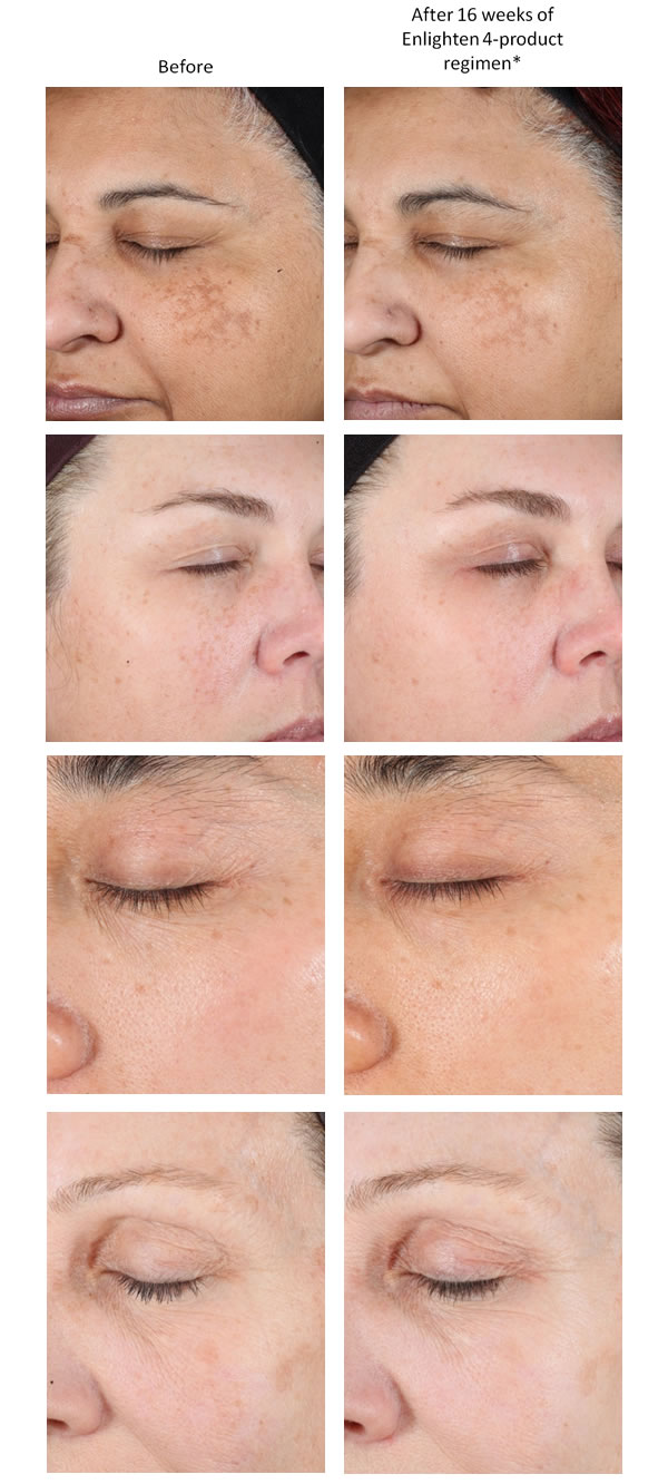 NEOSTRATA ENLIGHTEN Before & After