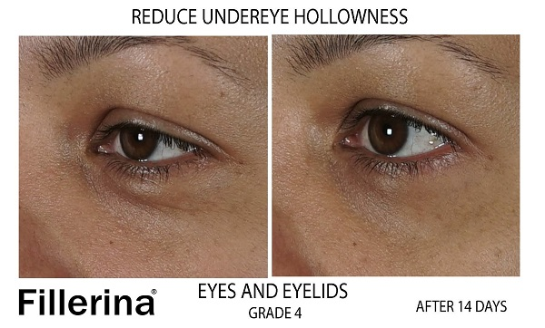 Fillerina Eyes and Eyelids Grade 4 Before & After