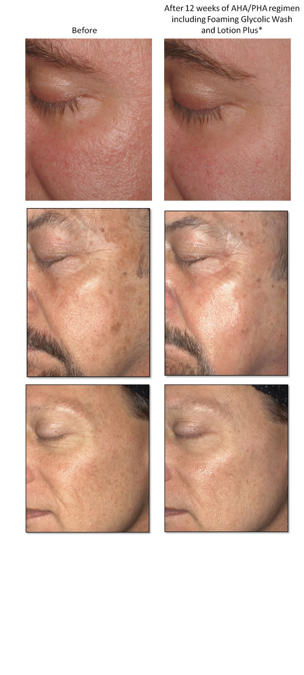 Foaming Glycolic Lotion Plus Before & After