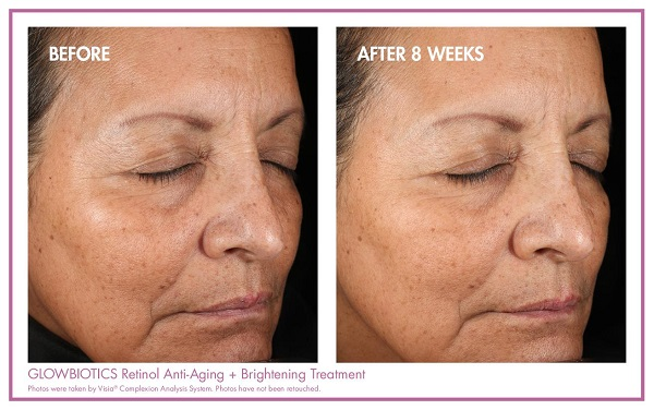 GLOWBIOTICS Retinol Anti-Aging + Brightening Treatment Before & After 1