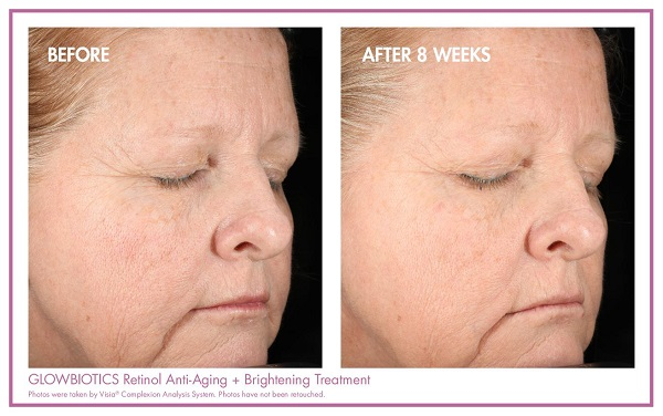 Glowbiotics Retinol Anti Aging Treatment