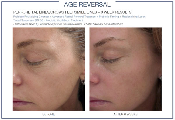 GLOWBIOTICS MD Age Reversal Daily Essentials Before & After 2