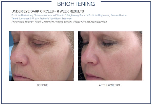 GLOWBIOTICS MD Brightening Daily Essentials Before & After 1