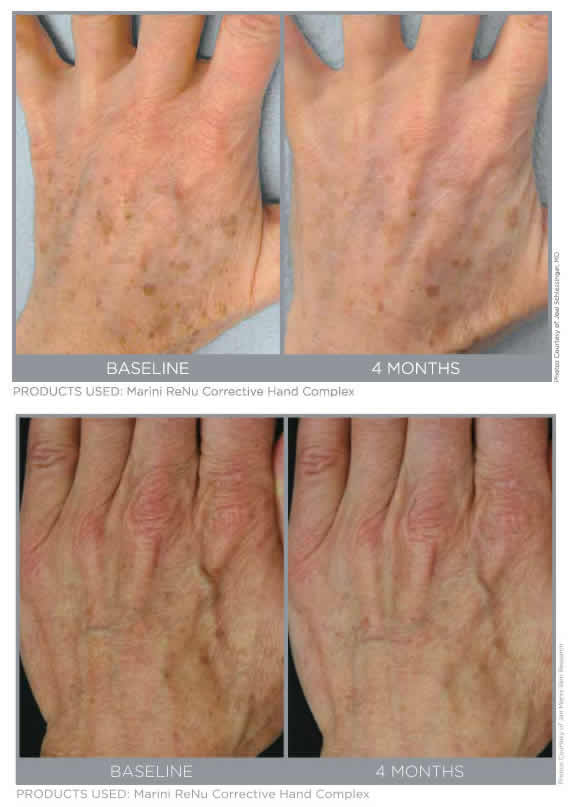 Jan Marini Marini ReNu Corrective Hand Complex Before & After