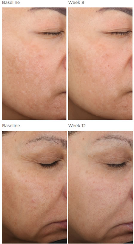 SkinMedica LYTERA 2.0 Before & After