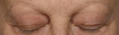 M2 Revitalizing Eye Repair Cream Results: After