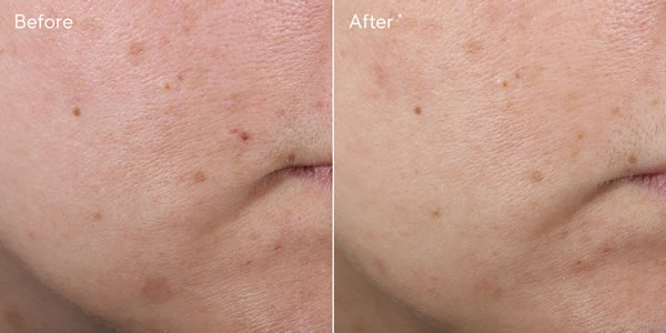 Murad Rapid Age Spot Correcting Serum (Environmental Shield) Before & After