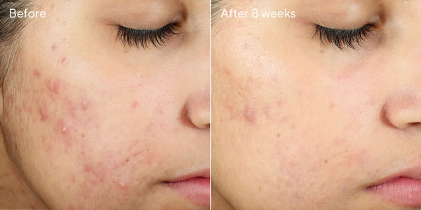 Murad Invisiscar Resurfacing Treatment (Acne Control) Before & After