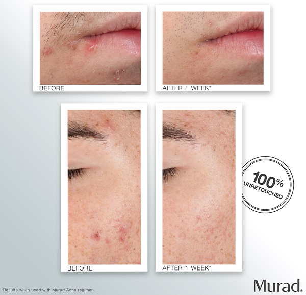 Murad Outsmart Acne Clarifying Treatment Before & After