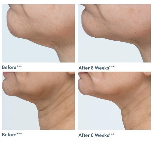 NIA24 Neck Sculpting Complex Before & After