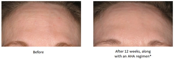 NeoStrata Smooth Surface Daily Peel (RESURFACE) Before & After