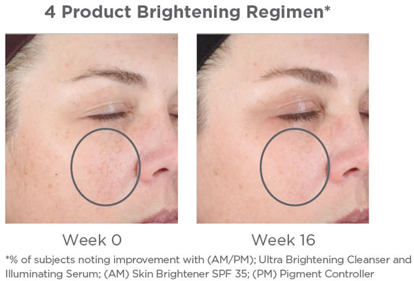NEOSTRATA Brightening System Kit Before & After