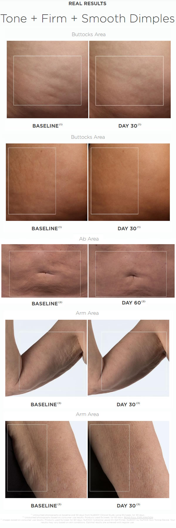 NuFACE NuBODY Skin Toning Device Before & After