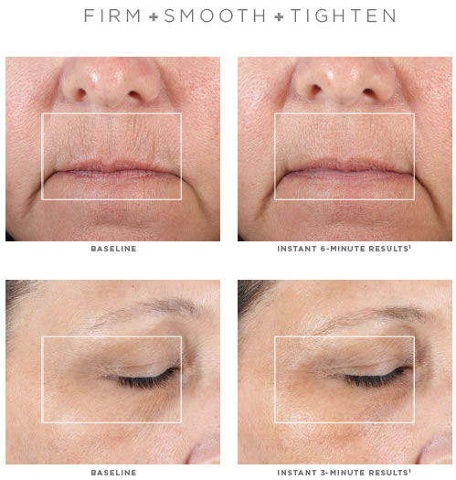 NuFACE FIX Line Smoothing Device Before & After