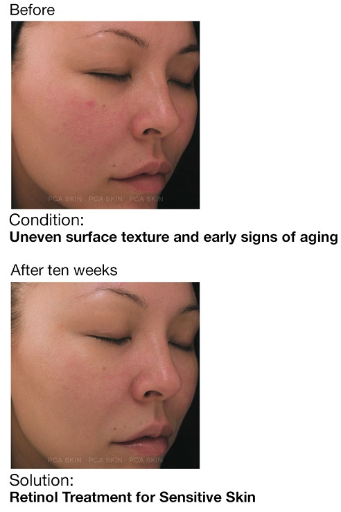 PCA SKIN Retinol Treatment  For Sensitive Skin Before & After