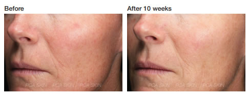 Pca Skin Resveratrol Restorative Complex Edcskincare Com