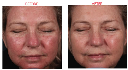 Replenix Biocellulose Recovery Mask Before & After