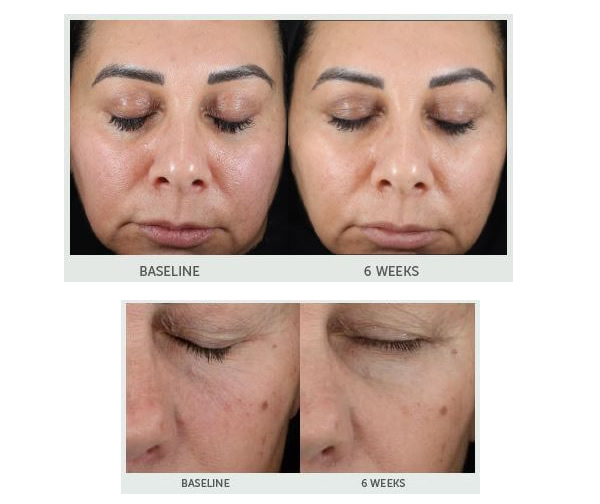 Replenix RetinolForte Before & After