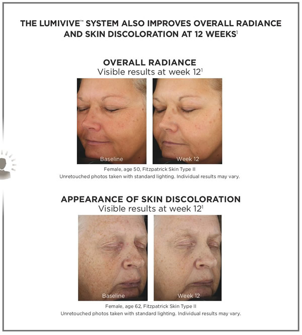 SkinMedica Lumivive System Before & After 2