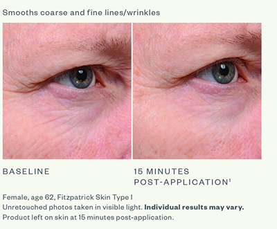 SkinMedica Instant Bright Before & After