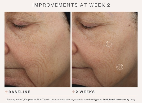 SkinMedica TNS Advanced+ Serum Before & After 1