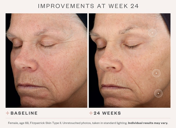 SkinMedica TNS Advanced+ Serum Before & After 2