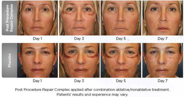 SkinMedica Procedure 360 System Before & After