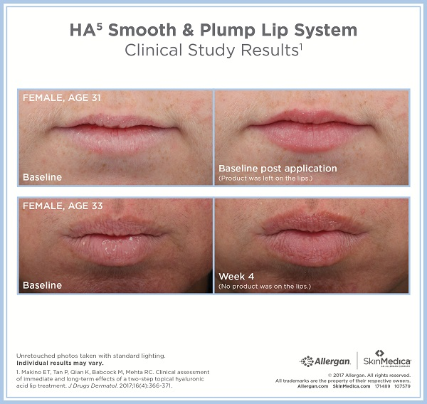 SkinMedica HA5 Smooth & Plump Lip System Before & After