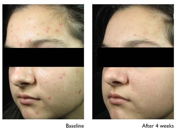 Vivier  Acne Before & After