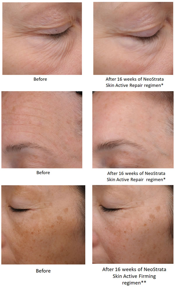 NeoStrata Exfoliating Wash (Skin Active) Before & After