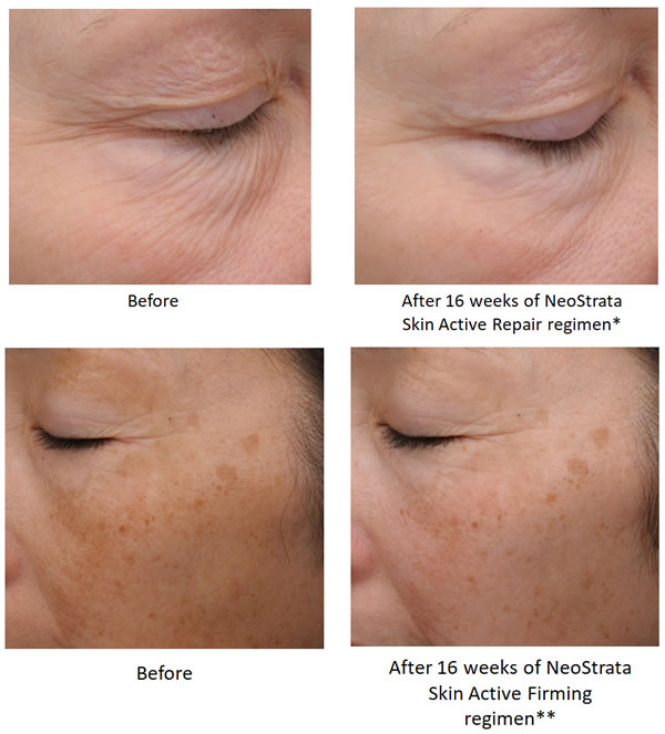 NeoStrata Intensive Eye Therapy (SKIN ACTIVE) Before & After
